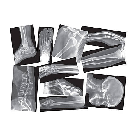 Roylco Broken Bones X-rays Set - Theme/Subject: Radiology - Skill Learning: Anatomy - 15 Pieces - 4+