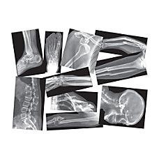 Roylco Broken Bones X rays Set